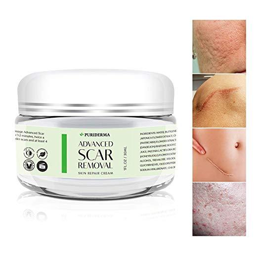 Advanced scar removal skin repair cream.